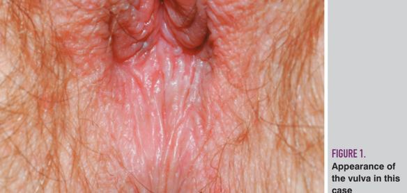 Picture of yeast infection on anus